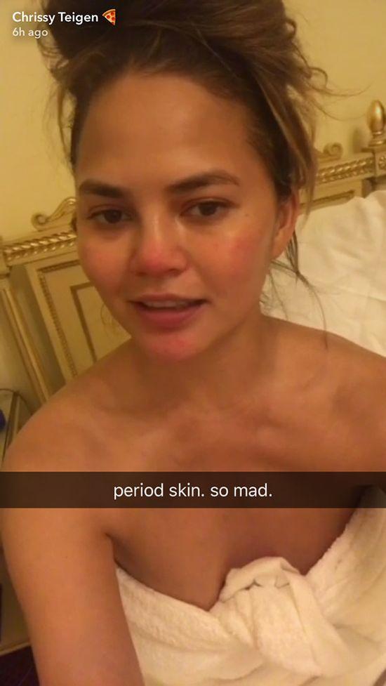 Pryszcze i straszne podrażnienia... Co sie stało z twarzą Chrissy Teigen?! (FOT)