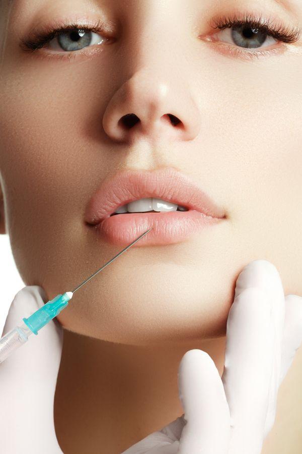 6 pytań dotyczących powiększania ust – co powinnaś wiedzieć? (FOTO)