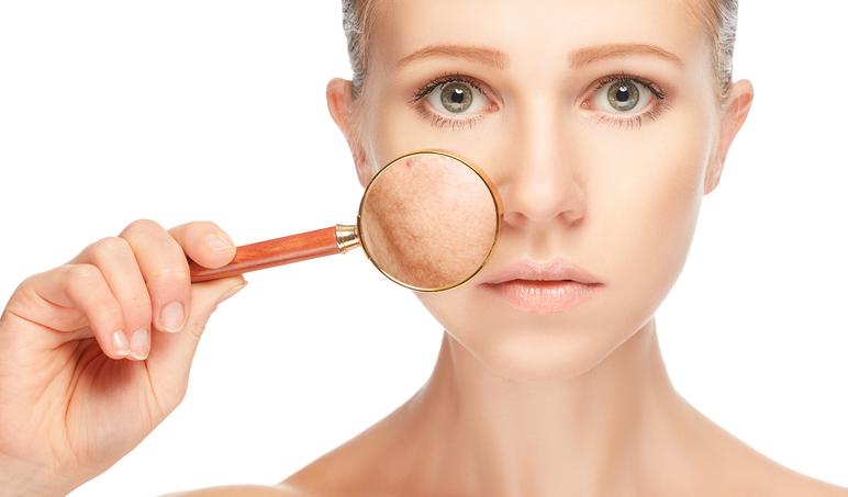Mycie twarzy - jak oczyszczać, by nie podrażniać. Zacznij robić to poprawnie!