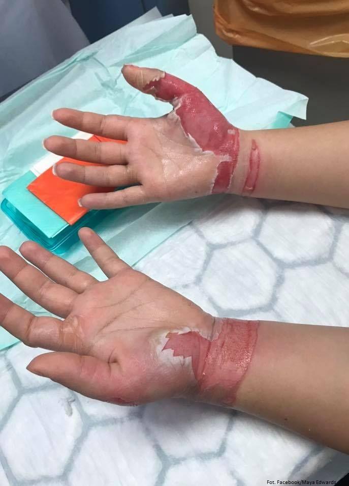 Nieudolna próba zrobienia paznokci zakończyła się poparzeniem trzeciego stopnia