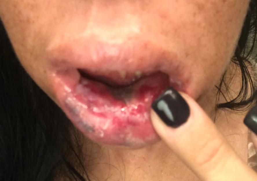 Usta tej kobiety zaczęły gnić po tym jak zafundowała sobie wypełniacze