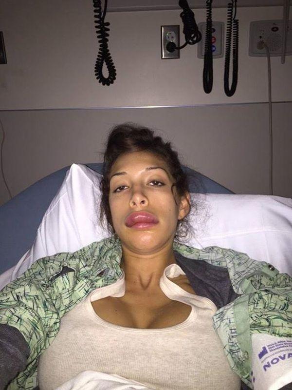 Usta Farrah Abraham chyba wróciły już do normy (FOTO)