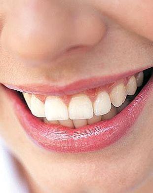 Pięć prostych metod na bielsze zęby