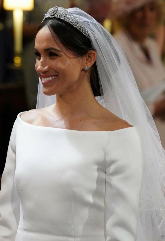 Tak wyglądała twarz Meghan Markle przed operacjami! Myślałyście, że jej uroda…