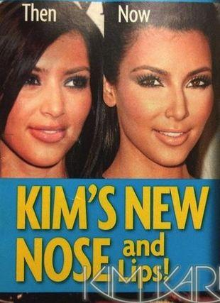 Czy Kim Kardashian miała operacje plastyczne?