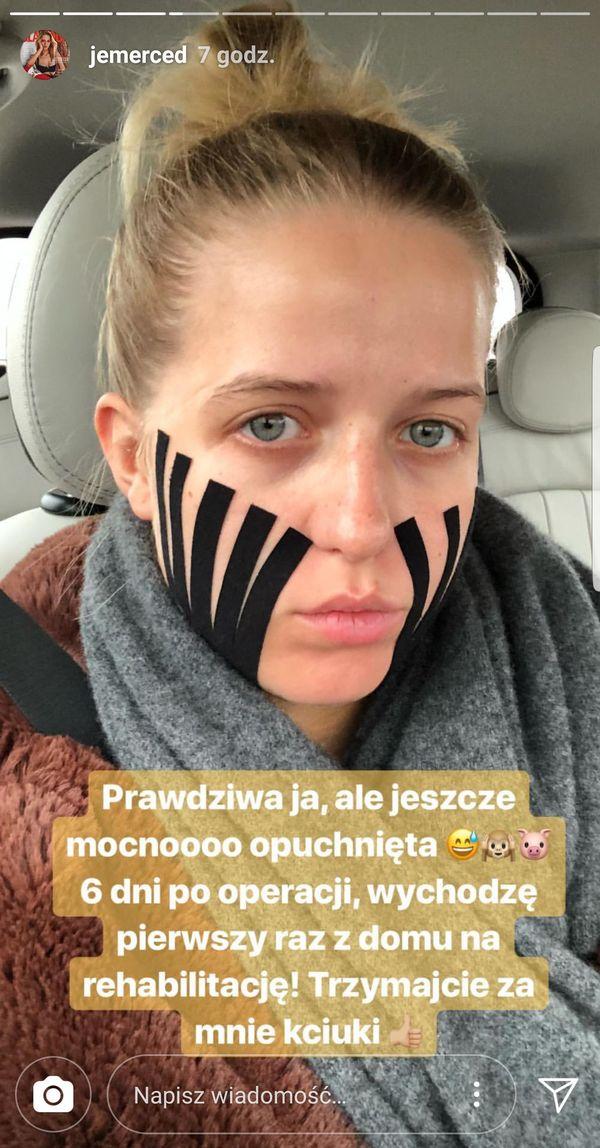 Jessica Mercedes pokazała, jak wyglądała 6 dni po operacji. Aż tak źle? (FOTO)