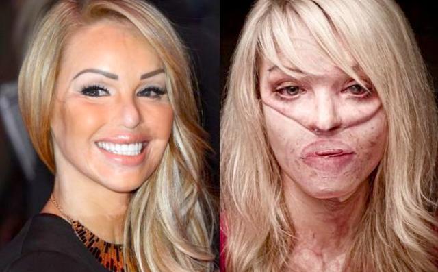Gdy w 2008 roku Katie Piper spotkała Davida Lyncha, miłośnika sztuk walki, nic nie zapowiadało tragedii. Śliczna blondynka rozpoczynała wówczas karierę w telewizji. Nie miała pojęcia, że jej wybranek był skazany za oblanie wrzątkiem twarzy mężczyzny.