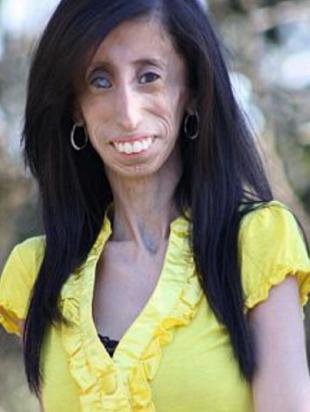 Wzruszająca historia Lizzie Velasquez