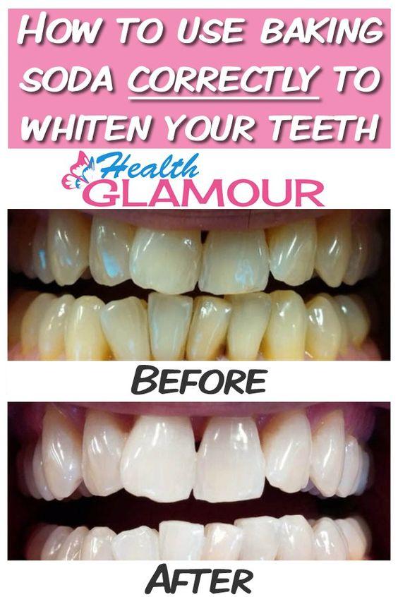 Jak wybielić zęby sodą?