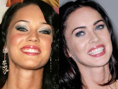 Gwiazdy i ich zęby - ile może piękny uśmiech?