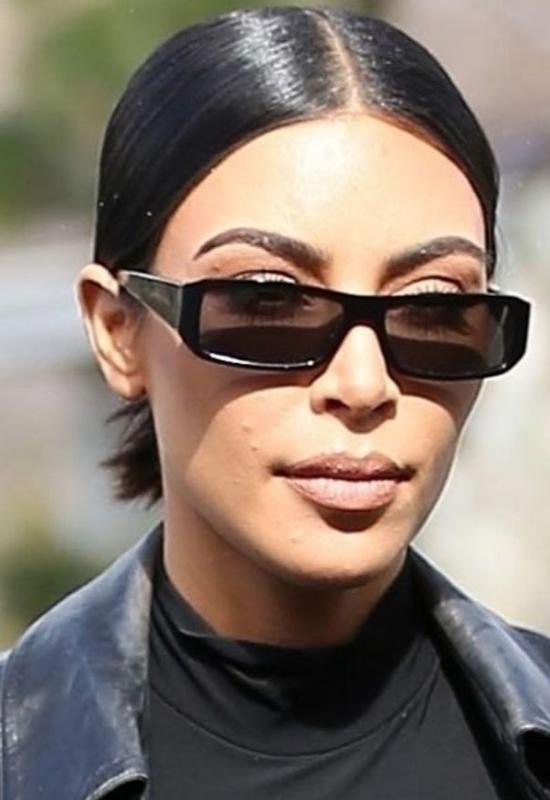 Łuszczyca zaatakowała twarz Kim Kardashian. Celebrytka jest zrozpaczona