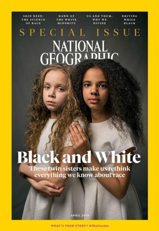 Pamiętacie bliźniaczki o różnych kolorach skóry? Dzisiaj mają po 11 lat