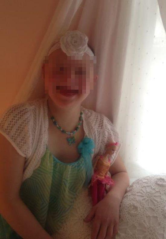 Lalki Barbie dla łysiejących dzieci