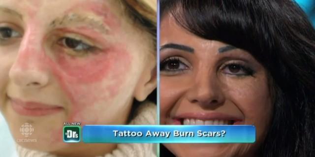 Ukrywa blizny pod tatuażem - zobacz koniecznie!