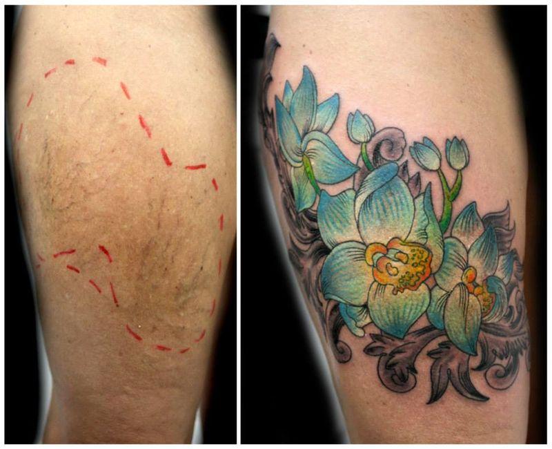 Tatuaże Które Leczą Z Kompleksów I Zakrywają Blizny Zeberka
