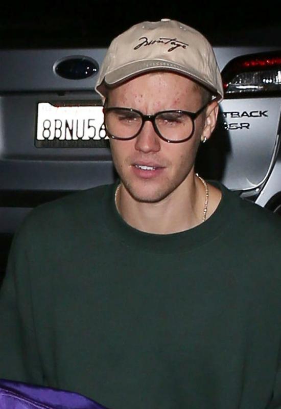 Coraz gorsza cera Justina Biebera, która wygląda jak młodzieńczy trądzik