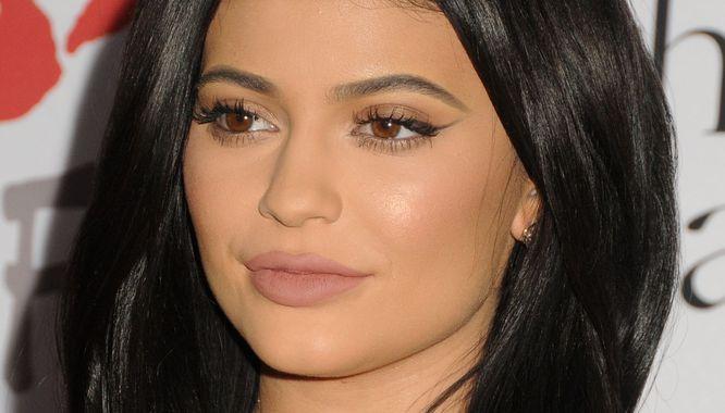 Auć! Boli od samego czytania... Kylie Jenner mówi, jak to jest przesadzić...