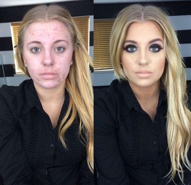 Masz trądzik? Nie wrzucaj zdjęć bez makijażu do sieci!