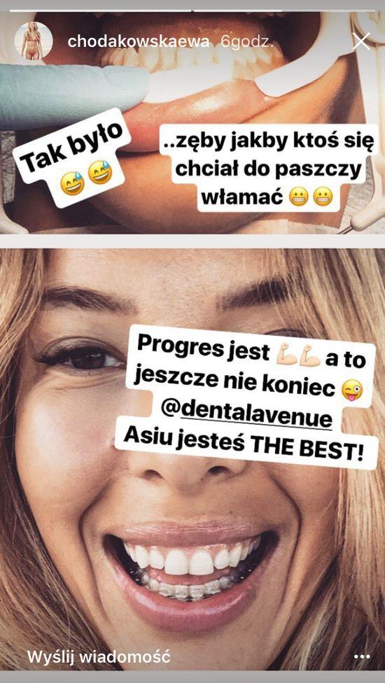 Ewa Chodakowska: Zęby jakby ktoś się chciał do paszczy włamać (FOTO)