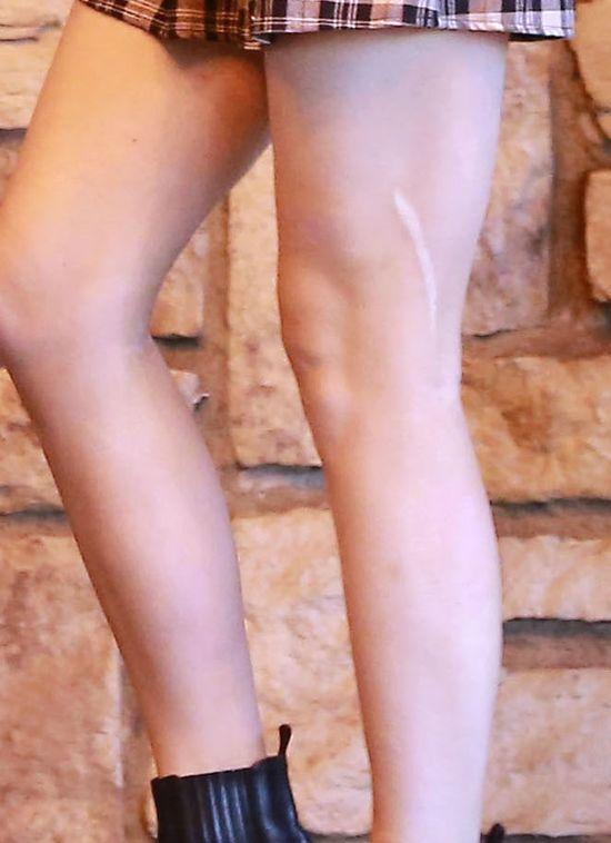Kylie Jenner zmniejsza swoją bliznę na nodze (FOTO)