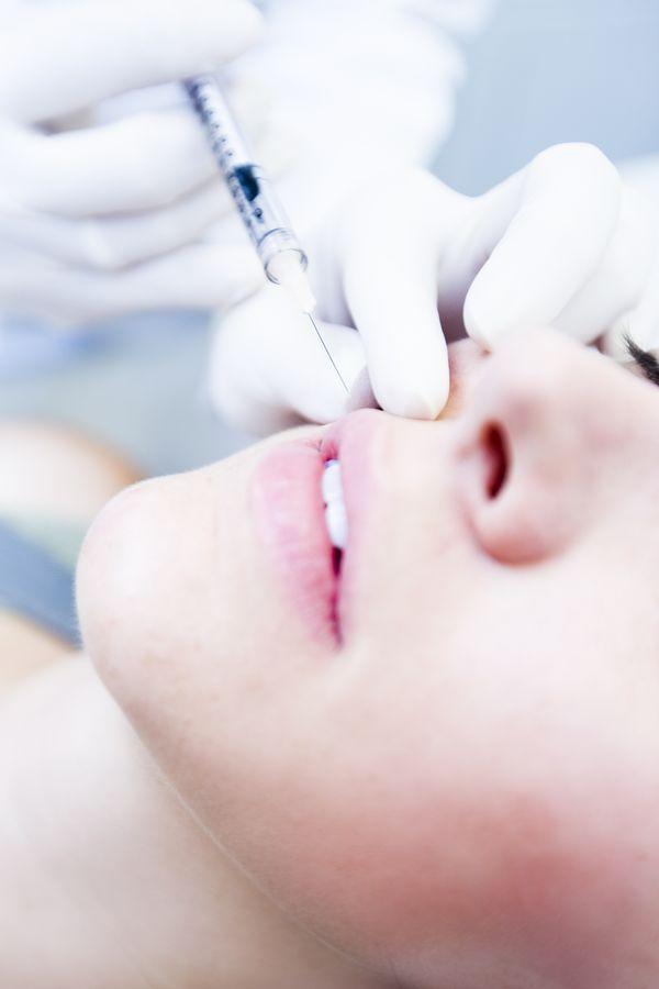 Powiększanie ust kwasem hialuronowym - co powinnyście wiedzieć?