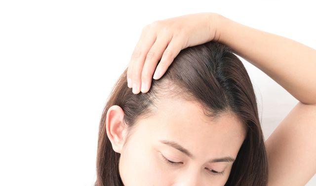 Przeszczep włosów - wszystko, co powinnaś wiedzieć na ten temat (FOTO)