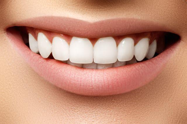 Wszystko, co powinnaś wiedzieć o wybielaniu zębów. Co? Gdzie? I jak?