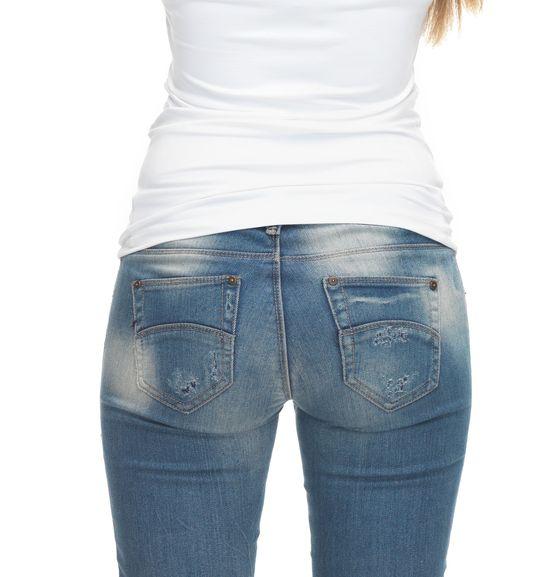 Obcisłe jeansy są groźne dla zdrowia - to NIE żart