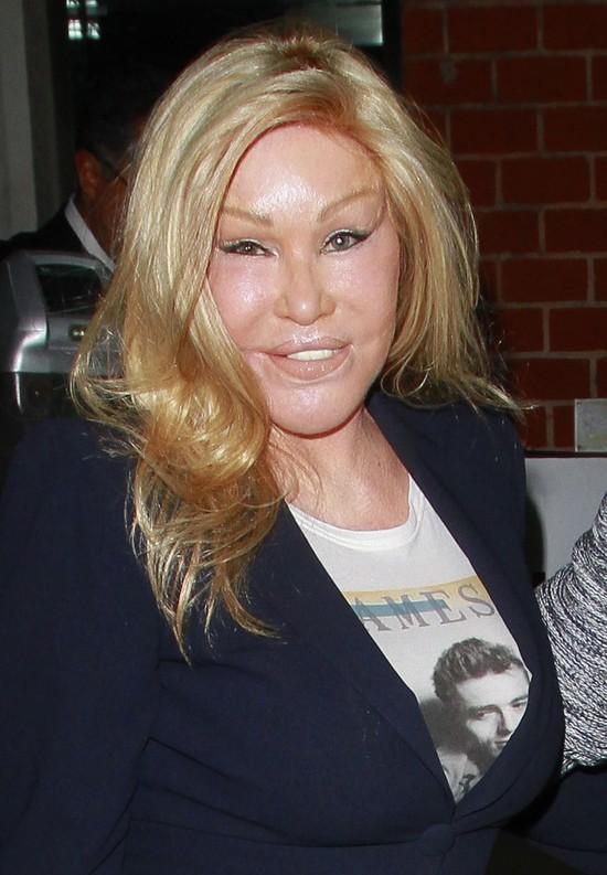 Tak wygląda dziś Kobieta Kot - królowa operacji plastycznych