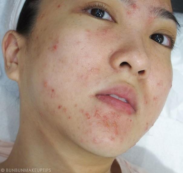 Dramat blogerki: Przez zabieg zniszczyła sobie cerę (FOTO)