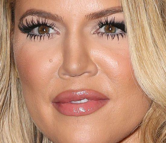 Khloe Kardashian: wypełniacze zrujnowały moją twarz!