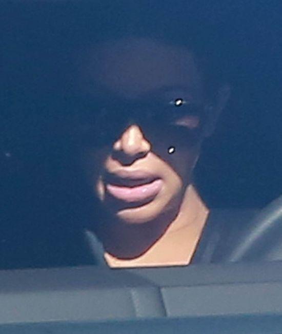 To, co Kim Kardashian zrobiła z ustami, jest STRASZNE (FOTO)