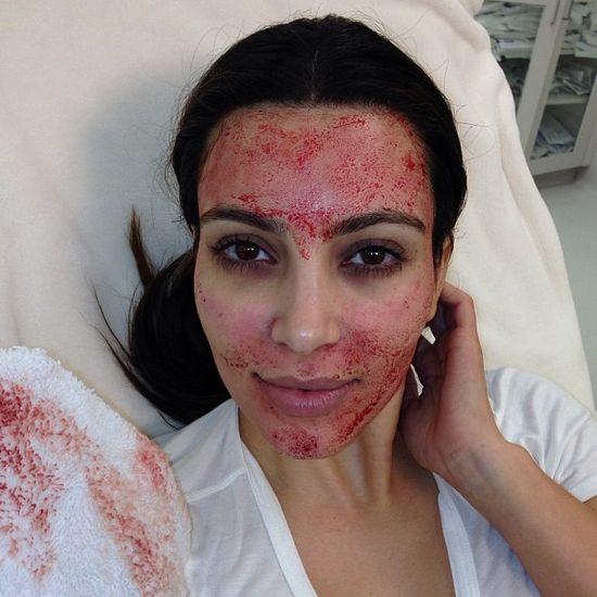 Kim Kardashian zamiast botoksu wybiera krew (FOTO)