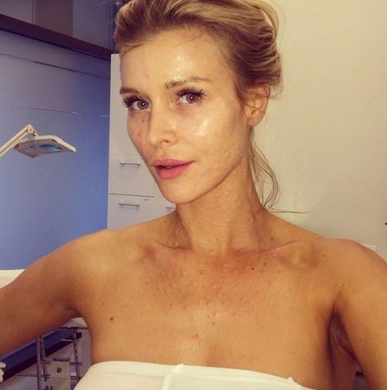 Joanna Krupa nagrała filmik podczas wampirzego liftingu