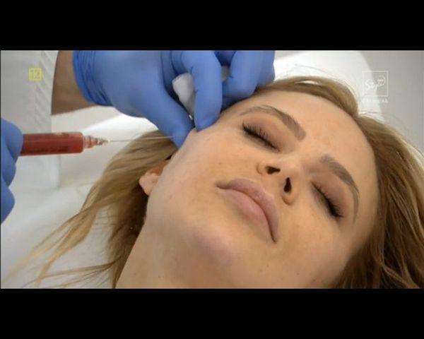 Maja Sablewska ostrzyknęła się na oczach kamer (VIDEO)