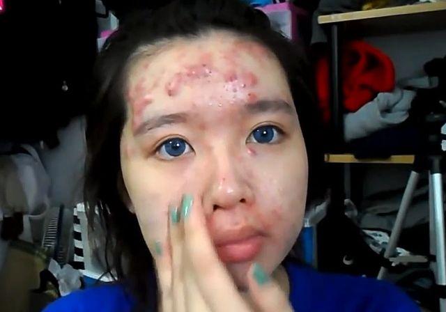 Makijaż tuszujący naprawdę duże problemy ze skórą (VIDEO)