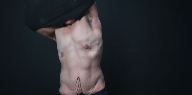 Schudł 70 kg, teraz walczy z nadmiarem skóry - NIE ŻAŁUJE!