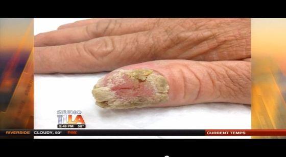 Zobacz to czego mogą doprowadzić żelowe paznokcie! (VIDEO)
