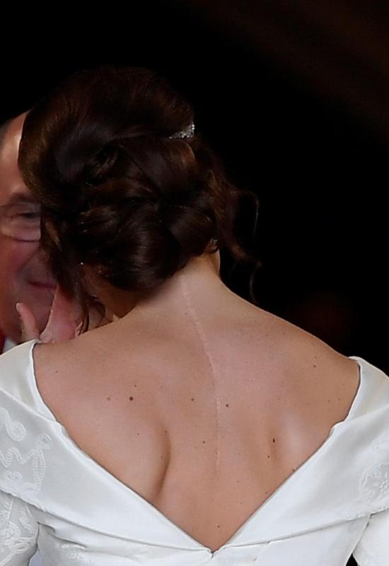Dlaczego księżniczka Eugenia pokazała wielką bliznę podczas ślubu?