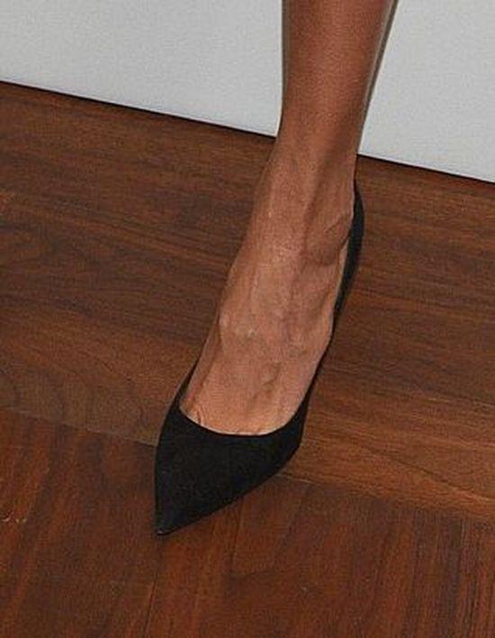 Sablewska nie powinna eksponowac stóp? To nie wygląda dobrze