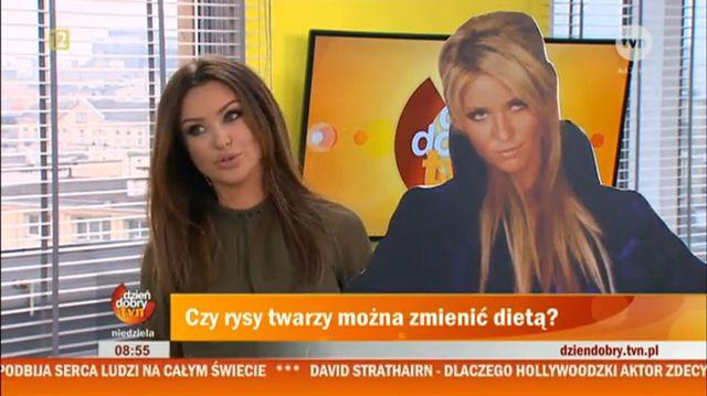 Monika Pietrasińska o swoich operacjach plastycznych