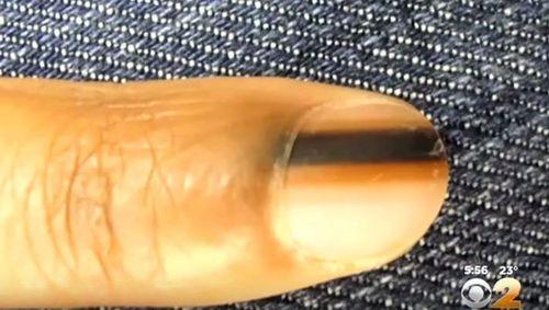 Takie zmiany na paznokciach powinny bardzo niepokoić [VIDEO]
