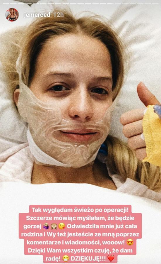 Jessica Mercedes już po operacji szczęki! Nagrała film zaraz po wybudzeniu!