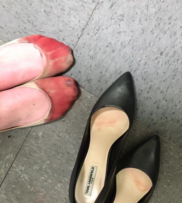 Kelnerka pokazała, jak wyglądają jej stopy po całym dniu pracy