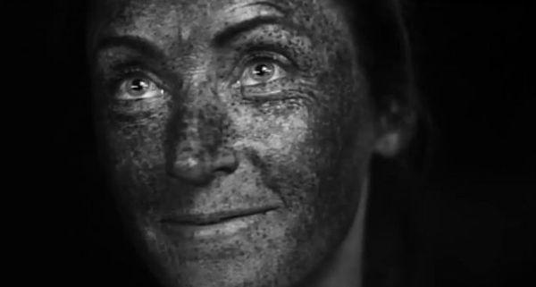 Co tak na prawdę słońce robi z Twoją skórą? (VIDEO)