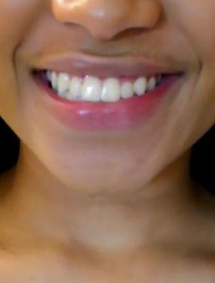 jak wybielić zęby w 5 minut