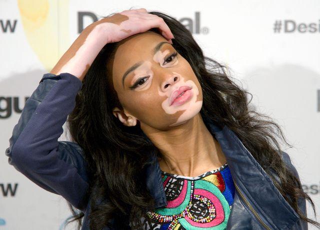 Winnie Harlow, modelka z bielactwem, twarzą marki Designual