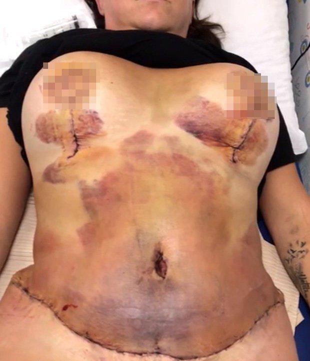 Skorzystała z usług podejrzanej kliniki. Operacja mogła skończyć się śmiercią