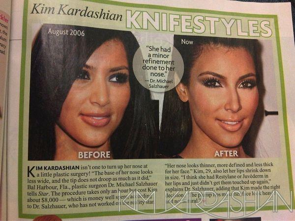 Czy Kim Kardashian miała operacje plastyczne