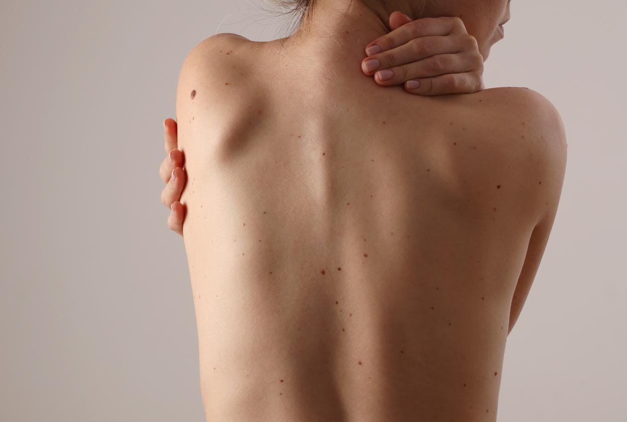 Trądzik na plecach i dekolcie - jak skutecznie go zwalczyć